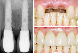 Dental Implants Faq The University Dental And Implant Centre