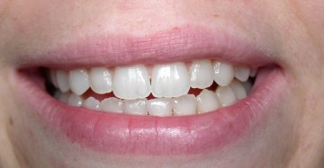 [After Whitening]